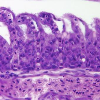 Flavobacterium (thin filaments) adhering to gill epithelium.