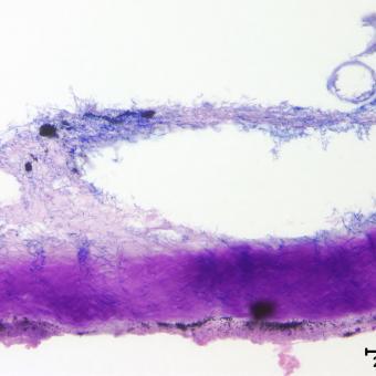 Flavobacterium (thin filaments) adhering to fish skin.