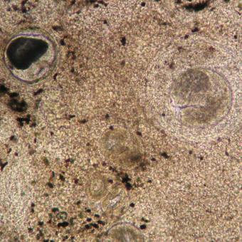 Apophallus metacercaria.