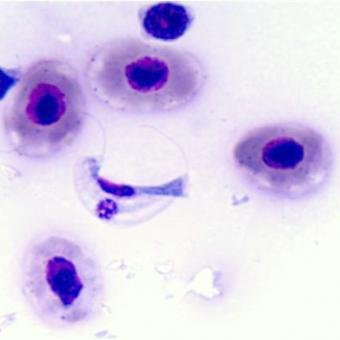Stained blood smear showing the hemoflagellate Cryptobia salmositica.