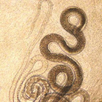 Adult Capillaria nematode, filled with eggs.