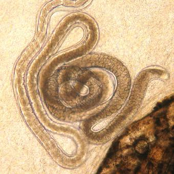 Adult Capillaria nematode, filled with eggs.