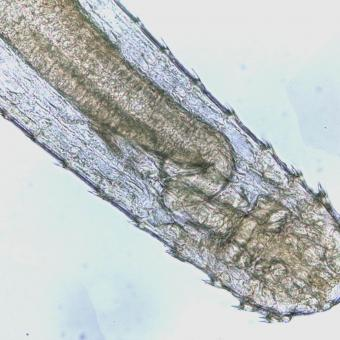 Anterior (head) end of adult Spinitectus nematode.