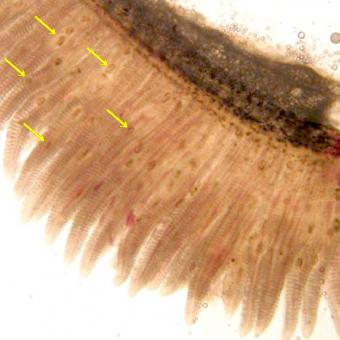 Trematode metacercariae (arrowed) in gills.