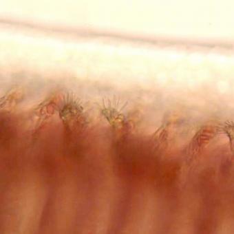 Trichophyra on gills.